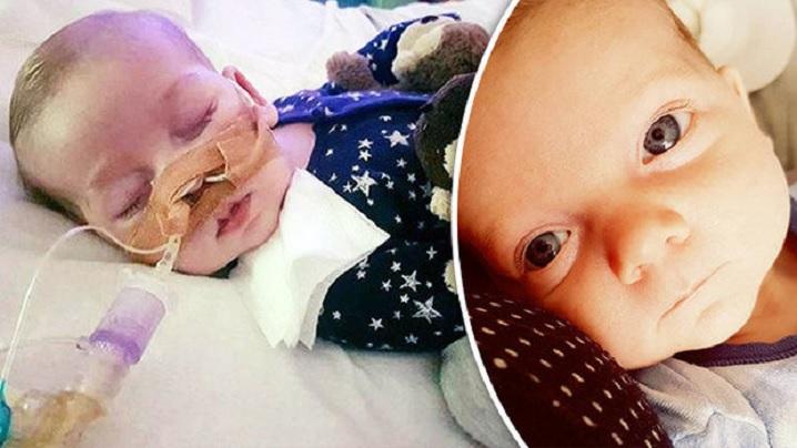 Bebeluşul Charlie Gard a deschis ochii şi i-a privit pe părinții săi înainte de a muri