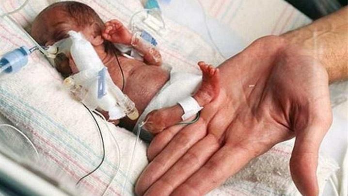 Emilia, cea mai mică fetiță din lume, un miracol viu