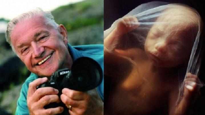 FOTO/VIDEO: De la concepție și până la naștere: Miracolul vieții în imagini uimitoare